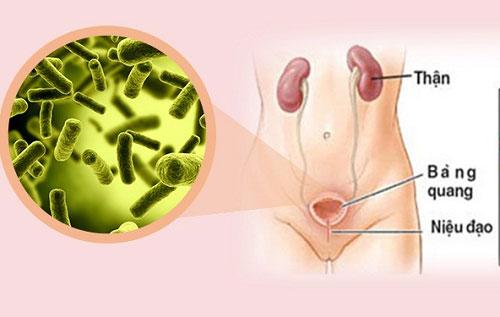 Vệ sinh không sạch sẽ là nguyên nhân bệnh viêm đường tiết niệu