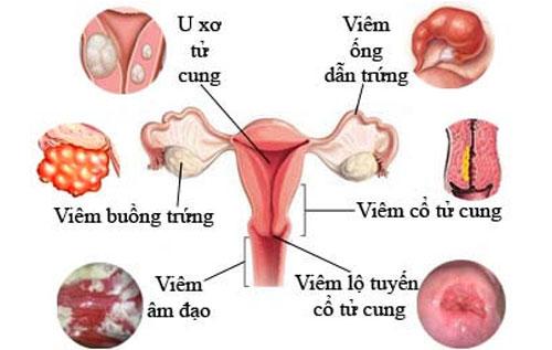 Tiền sử mắc bệnh phụ khoa cũng có thể là nguyên nhân gây bệnh u nang cổ tử cung