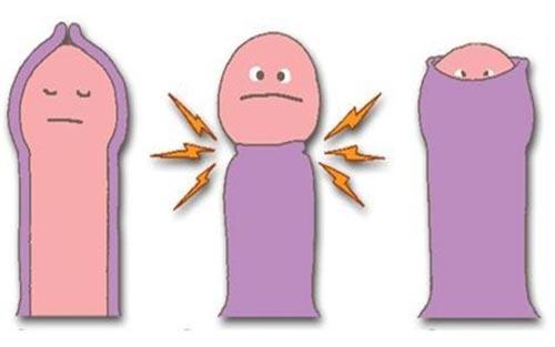 icon cắt bao quy đầu ở trẻ em