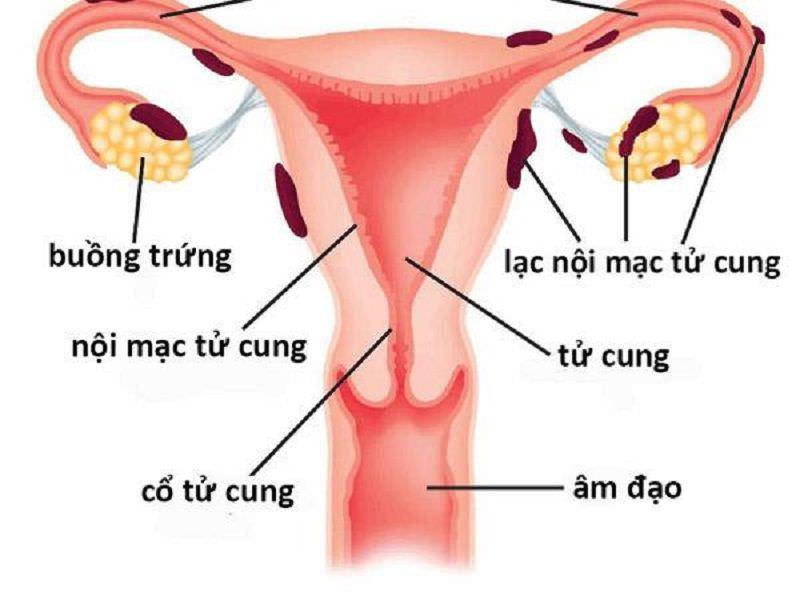 Tổng quan về bệnh lạc nội mạc tử cung và cách điều trị