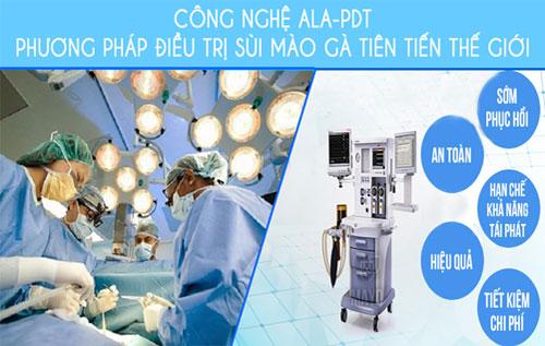 Phương pháp ALA - PDT là một kỹ thuật an toàn, hiệu quả trong điều trị sùi mào gà