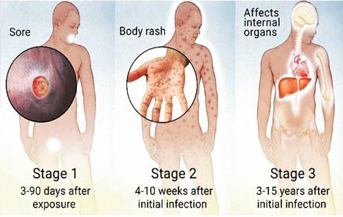 Các giai đoạn phát triển của bệnh giang gây ảnh hưởng lớn đến sức khỏe bệnh nhân
