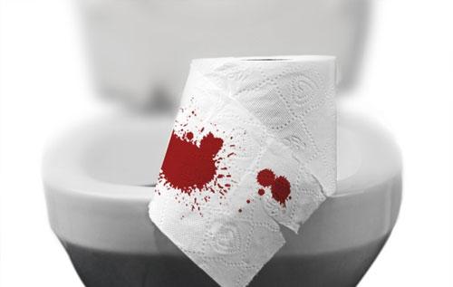 Hậu môn bị chảy máu khi đi vệ sinh là bệnh gì