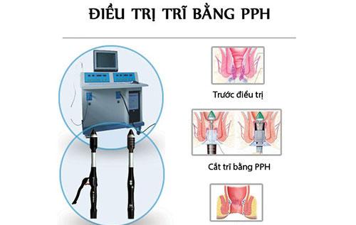 phuong phap cat tri PPH