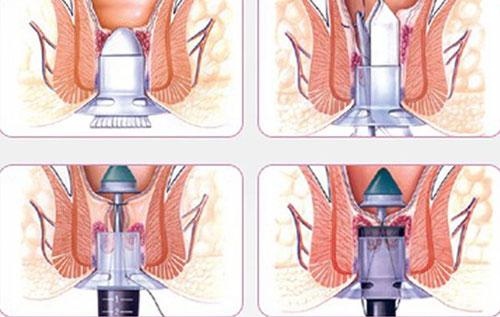 Điều trị trĩ hỗn hợp bằng phương pháp PPH mang đến hiệu quả cao