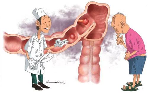 Tìm hiểu về bệnh polyp hậu môn là gì?