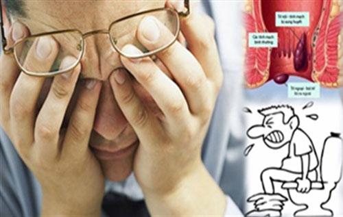 Nguyên nhân gây ra bệnh trĩ ngoại ở nam giới